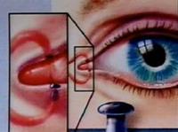 Нарушение зрения болезни