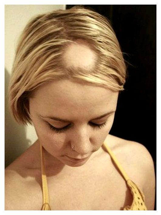 Лечение женского облысения