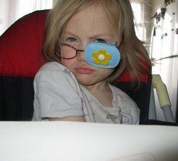 Очки для лечения косоглазия